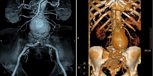 SLK Kliniken: Brust- und Bauchaortenaneurysmas